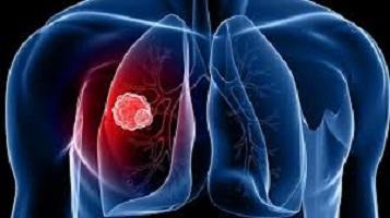 Photo of Akciğer Kanserinin işareti en önemli 7 belirti