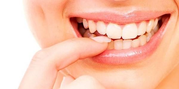 Photo of Sağlıklı diş etleri için ağız bakımına özen gösterin