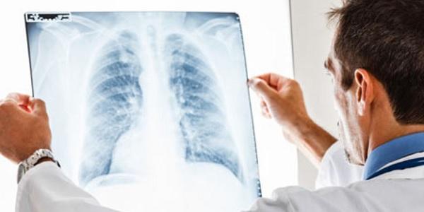 Photo of Akciğer kanseri tehlikesi erken teşhisle önlenebilir